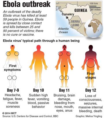 ebola-symptoms1